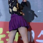 【Red Velvetジョイ】太もものアザが脂肪溶解注射跡か?と話題に→韓国の反応「昔からなかった?」